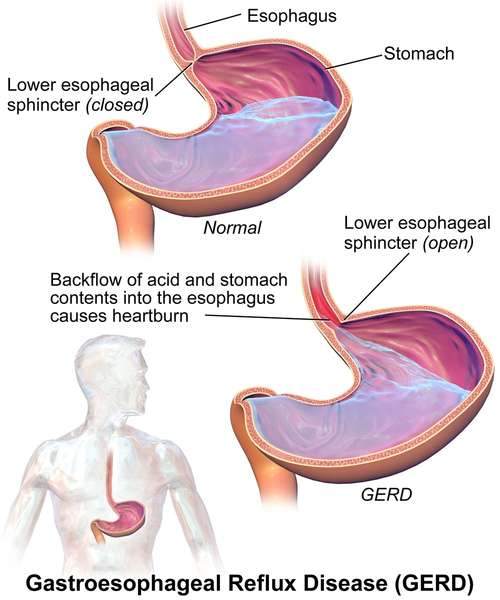Labeled diagram of GERD, showing stomach with backflow of acid and stomach contents into esophagus
